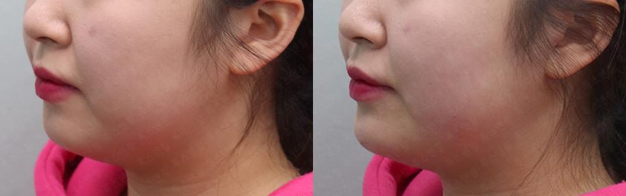 턱끝필러, 자갈턱보톡스 시술전후