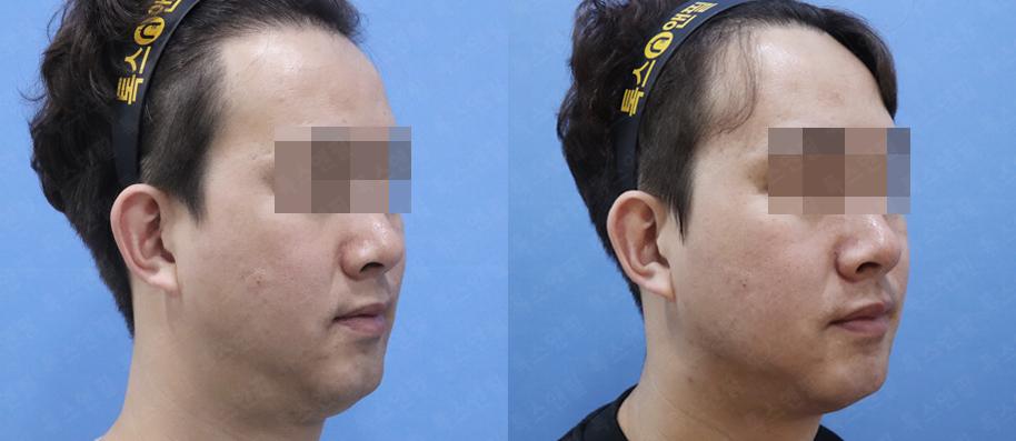 턱밑지방흡입+재배치,실루엣,포르테,침샘보톡스 시술전후