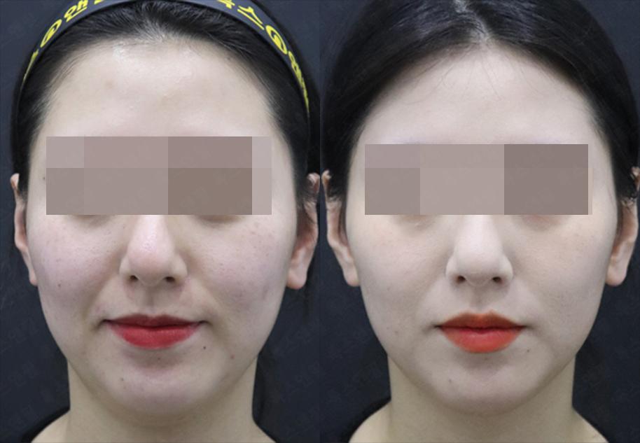 얼굴 톡팻주사 시술전후