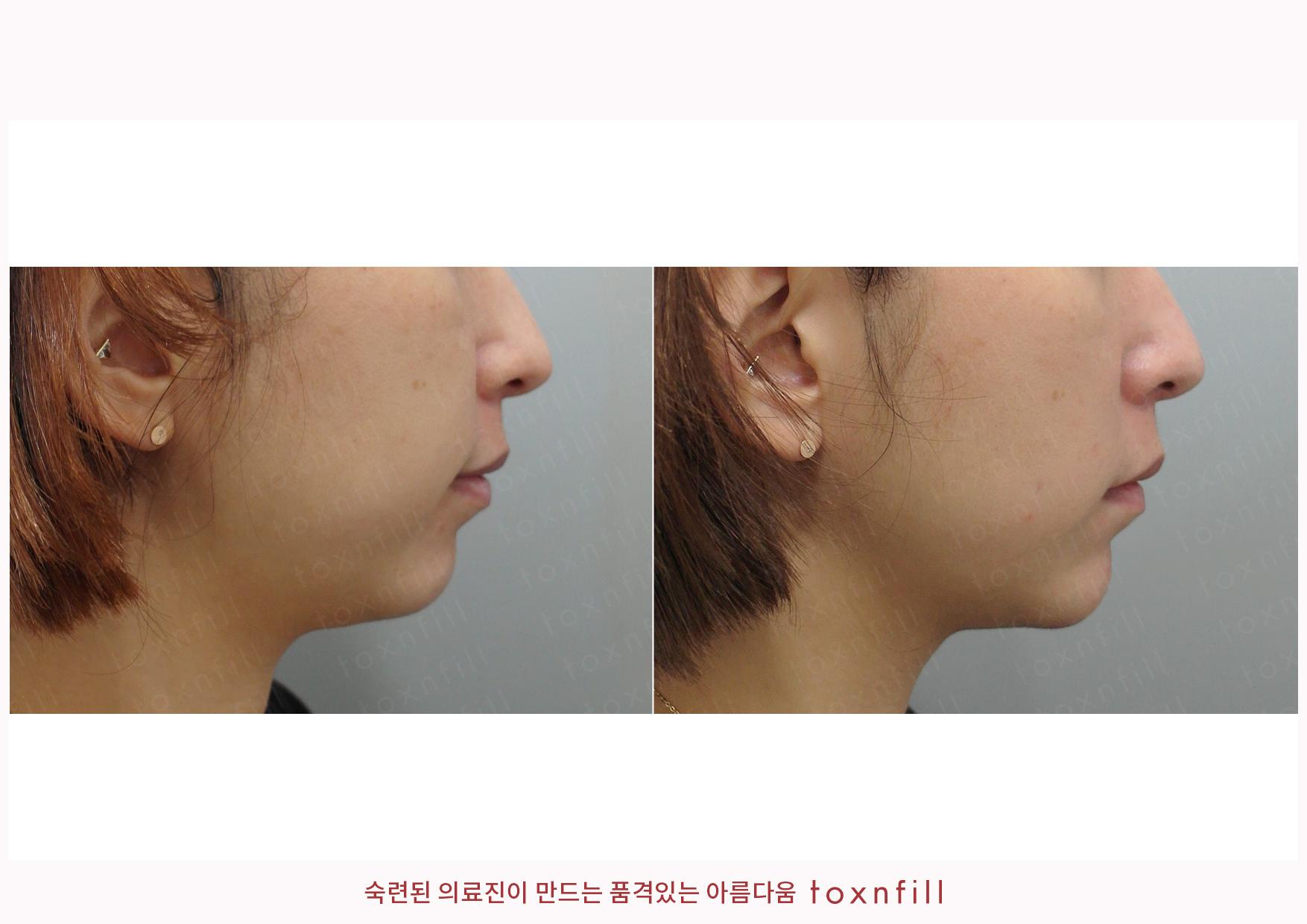 턱끝필러 시술전후