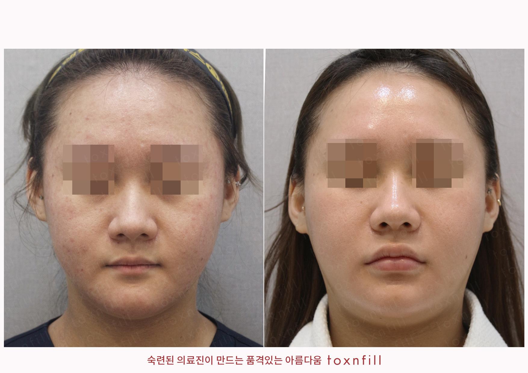 리쥬란+흉터모공(비너스비바)+홍조(엑셀브이) 시술전후