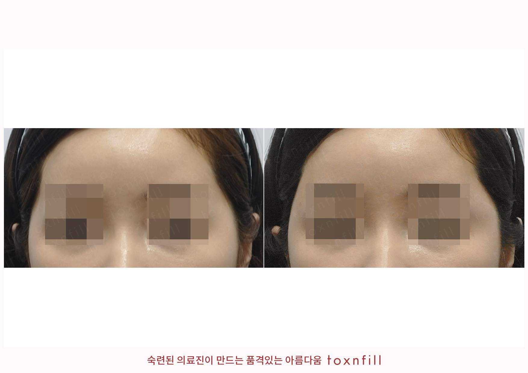 관자,입꼬리,입술볼륨필러+입꼬리보톡스 시술전후