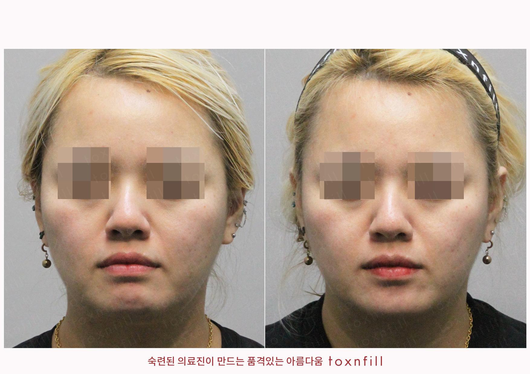 시술전후_김연주_슈링크+달걀주사_작업파일_정면.jpg