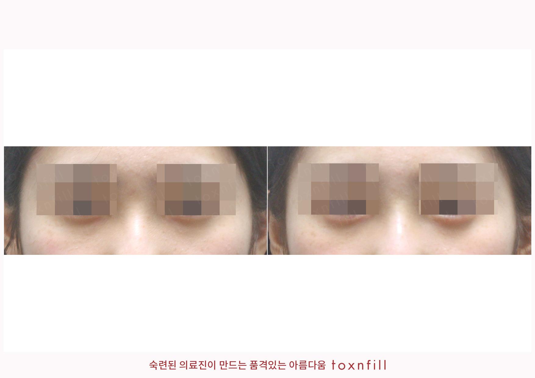 애교필러+슈퍼하이코 시술전후