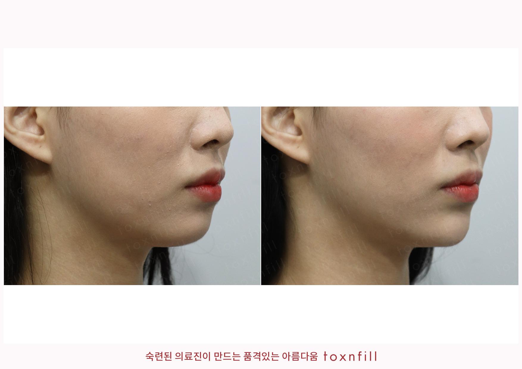 턱끝,눈밑필러+이노필 시술전후