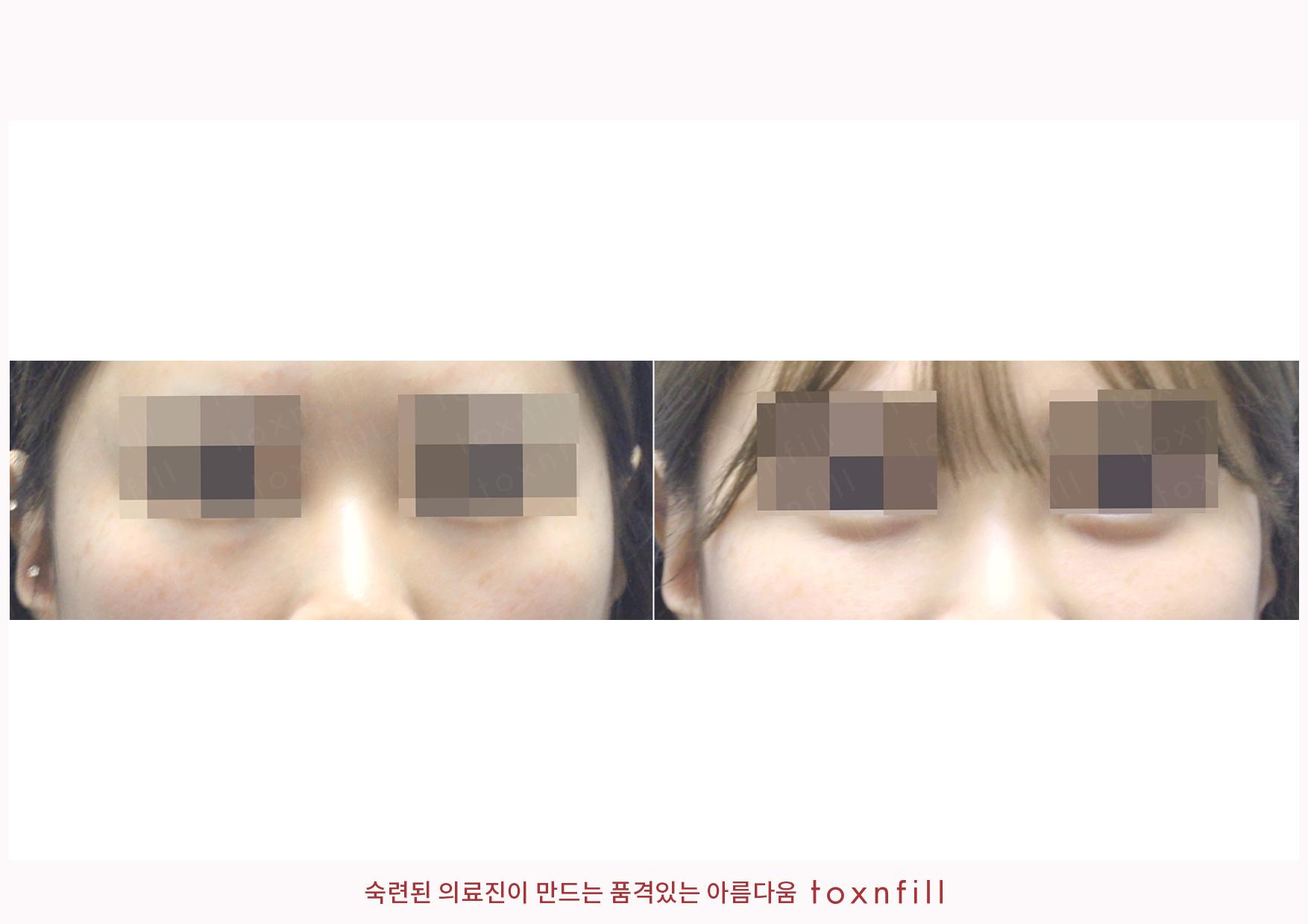 인모드+성형주사(심술보)+애교필러 시술전후