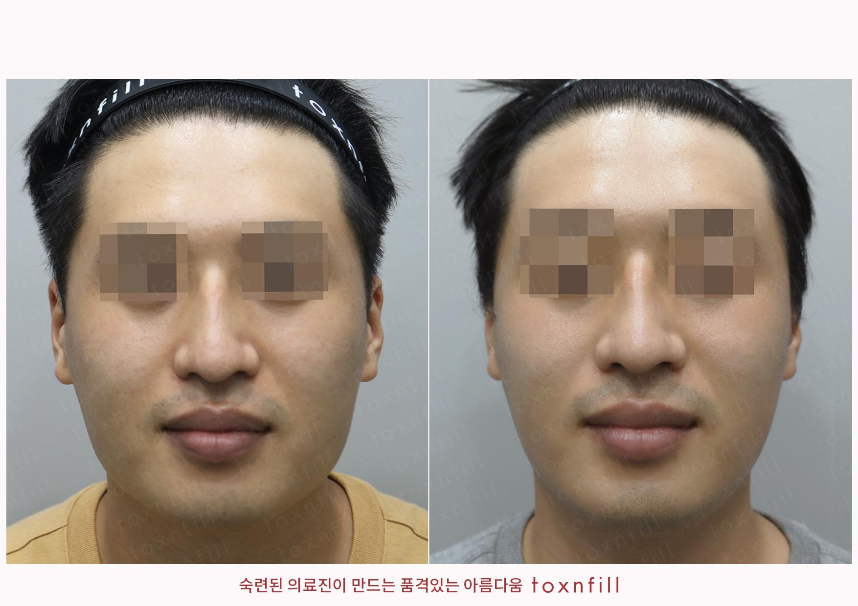 시술전후_이효성_슈링크+제로핏주사+턱보톡스_작업파일_정면.jpg