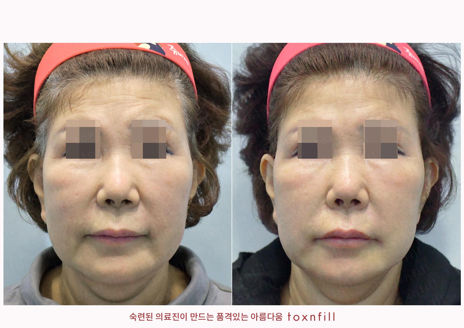 앞볼,마리오넷,인중,입꼬리,입술볼륨필러+입가더모톡신+눈가전체보톡스 시술전후