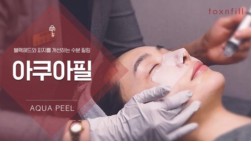 [스킨케어] 아쿠아필/비타민관리